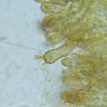 Cortinarius varius (baside sur la croix), ©Photo microscope Gérard Rivet