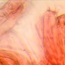 Baside d'Hygrocybe coccinea crenata (Hygrophore à bords crénelé), ©Photo Alain Millet