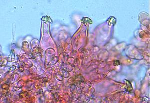 Mycologie Microscopie, cystides d'inocybe, ©Photo Alain Millet