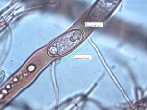 Spore de Sarcoscypha emarginata, Bord d'Arve (Cluses, 74), ©Photo Alain Benard