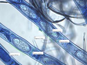 Spores de Sarcoscypha emarginata, Bord d'Arve (Cluses, 74), ©Photo Alain Benard