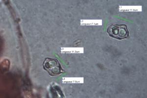Spores d'Entoloma incanum, Entolome à pied vert, La Sapinière (Fillière, 74), ©Photo Alain Benard