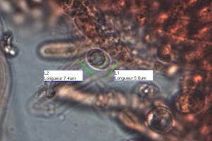 Spores de Tricholoma pardinum, Tricholome tigré, Le Pré Jourdan (Saint-Laurent, 74), ©Photo Alain Benard